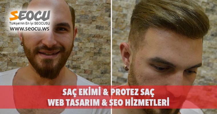 Saç Ekimi & Protez Saç Web Tasarım & Seo Hizmetleri